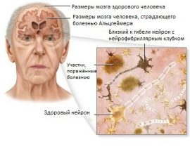 Уход за больными с болезнью Альцгеймера в пансионате «Серебряный рассвет»